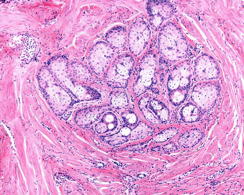 Areola gland, light micrograph