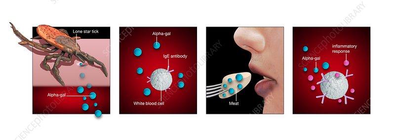 Alpha-gal allergy, illustration