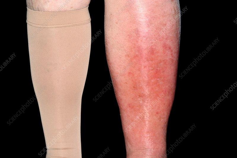 Cellulitis of the leg