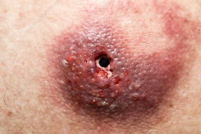 Sabaceous cyst on penis remarkable, useful