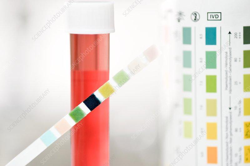 Urine test for cystitis