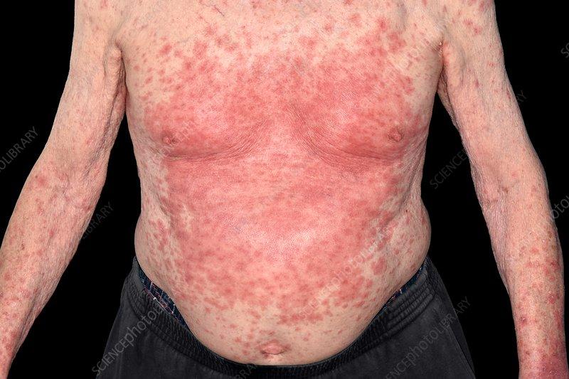 Drug allergy reaction