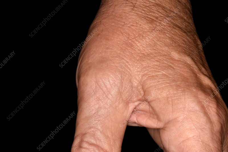 Gout of the thumb