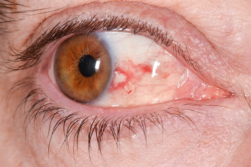 Bloodshot eye in high blood pressure