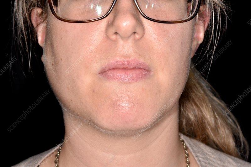 Adult mumps