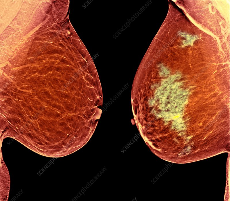 Breast cancer, X-ray