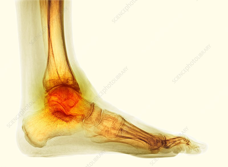 Osteoarthritis of the ankle, X-ray