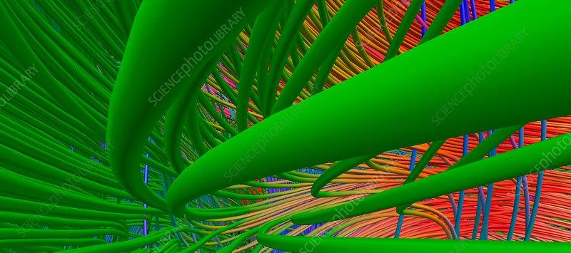 Brain fibres, fornix and corpus callosum, DTI scan
