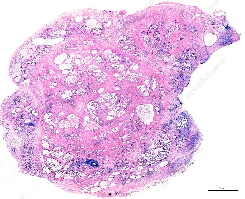 Benign prostatic hyperplasia, light micrograph
