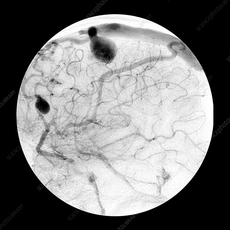 Angiogram of Arterial Venous Fistulas 9