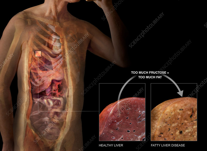 Sectioned Body and Liver, Fatty Liver Disease