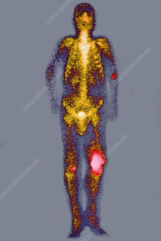 Osteosarcoma, Scintigram