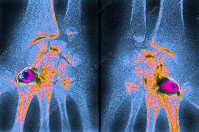Kienbock's Disease, X-ray