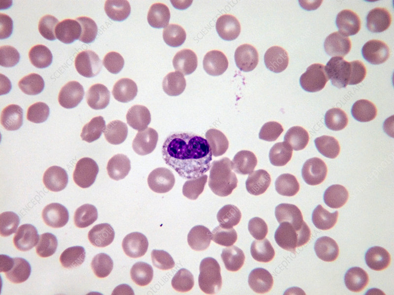 Metamyelocyte, LM