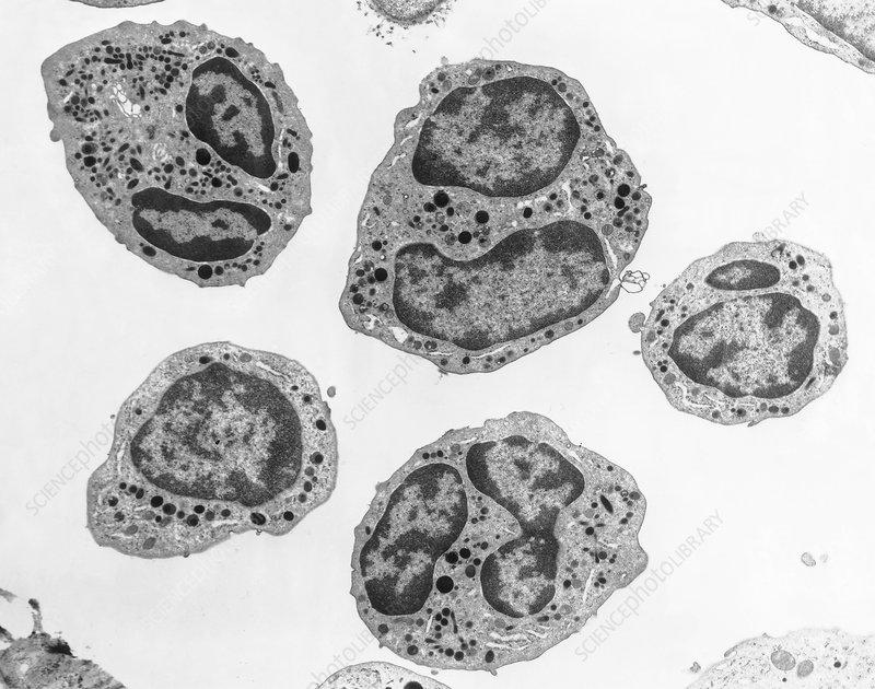 Leukocytes, EM