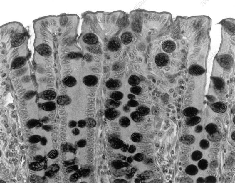 Colon Cells LM