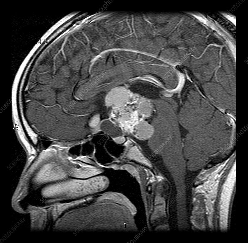 MRI of Craniopharyngioma