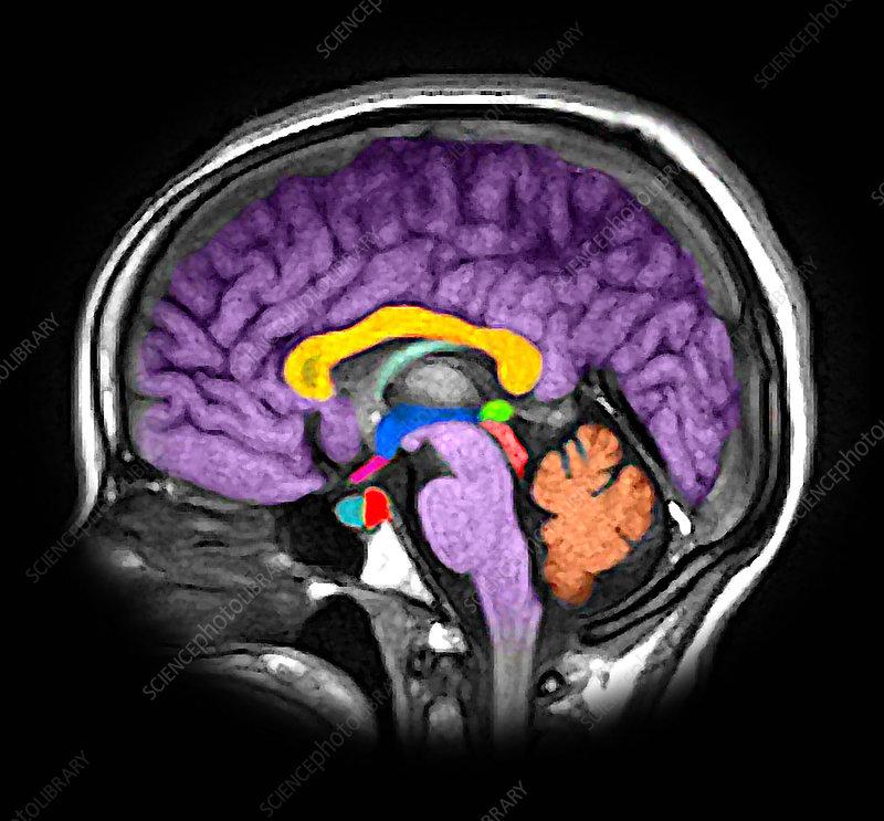 Enhanced Normal Sagittal MRI Brain