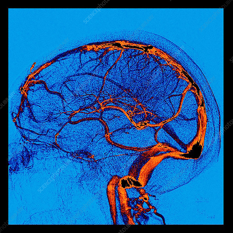 Enhanced Normal Lateral Cerebral Angiogram