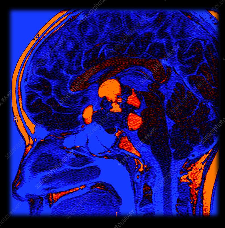 Enhanced MRI of Craniopharyngioma