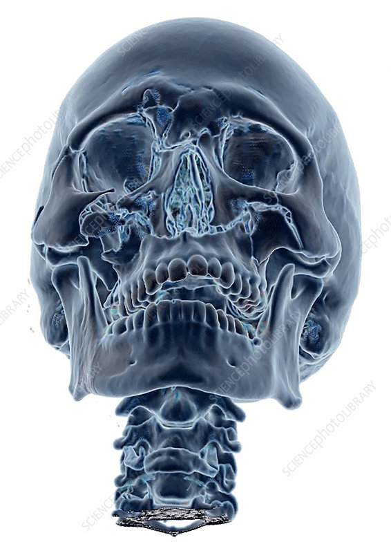 Enhanced 3D CT of Lefort Facial Fractures