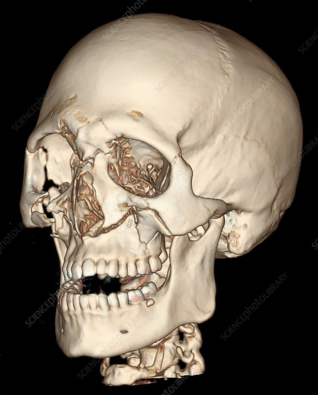 3D CT of Lefort Facial Fractures