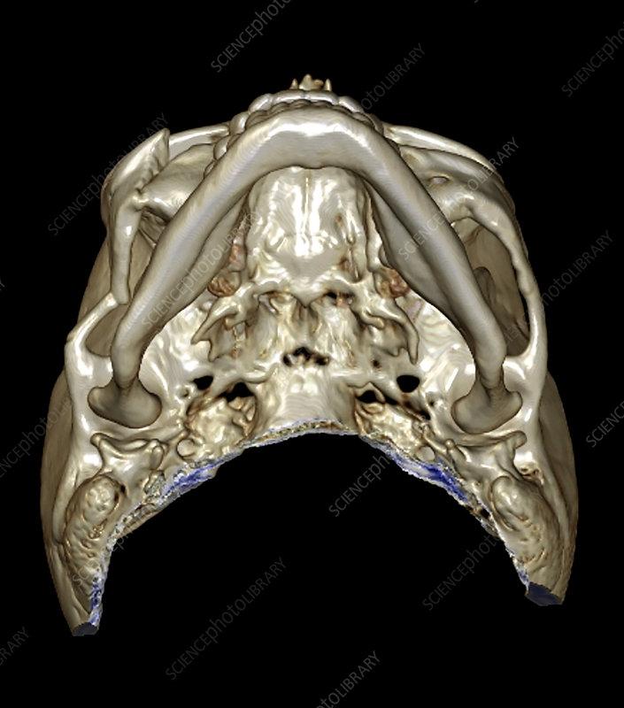 3D CT of Zygomaticomaxillary Complex Fracture