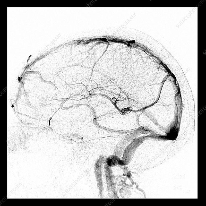 Normal Lateral Cerebral Angiogram