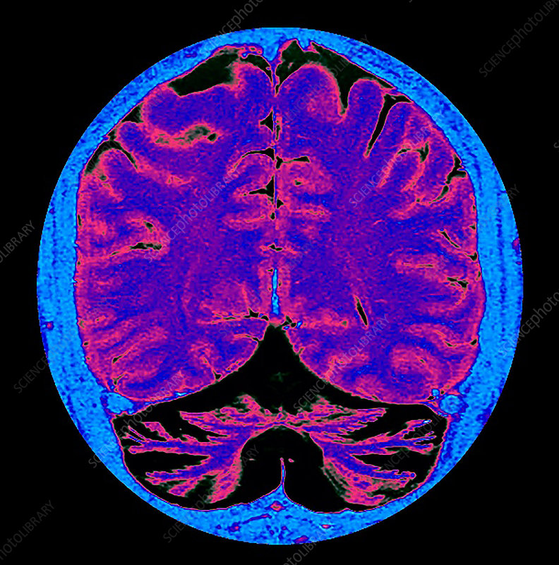 Enhanced Severe Cerebellar Atrophy