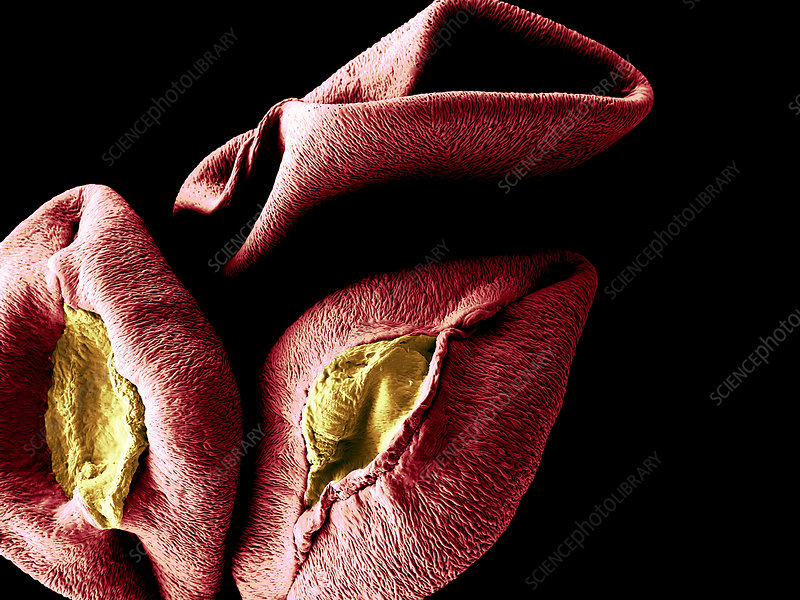 Alstroemeria Pollen Grains, SEM