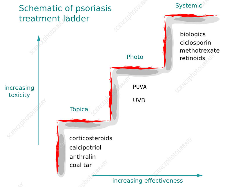 Treatment Ladder for Psoriasis, Diagram