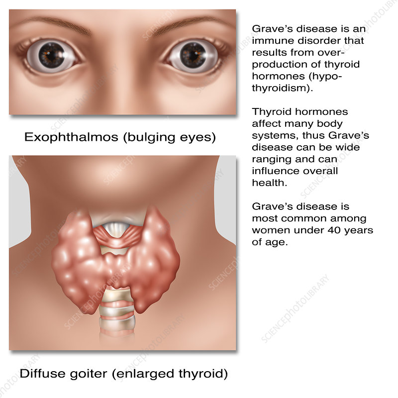 Graves Disease, Illustration