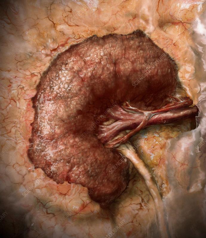 Stage 5 Kidney Disease