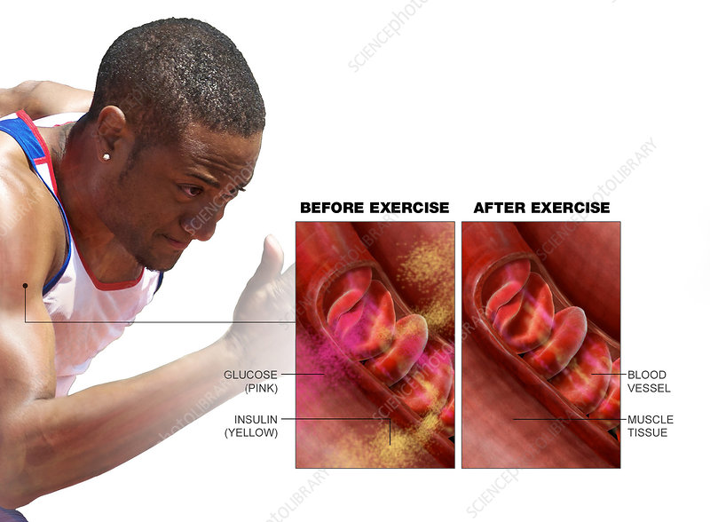 The Effects of Exercise on Glucose and Insulin Levels