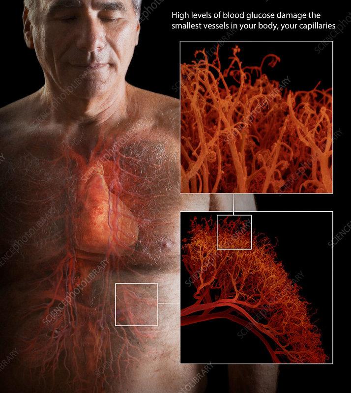 Diabetes and Damaged Capillaries