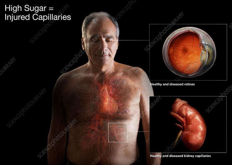 Capillary Damage from Diabetes