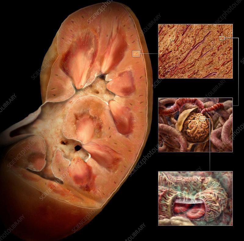Diabetic Kidney Damage