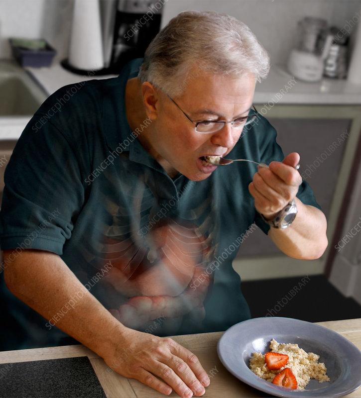 Diet and Type 2 Diabetes