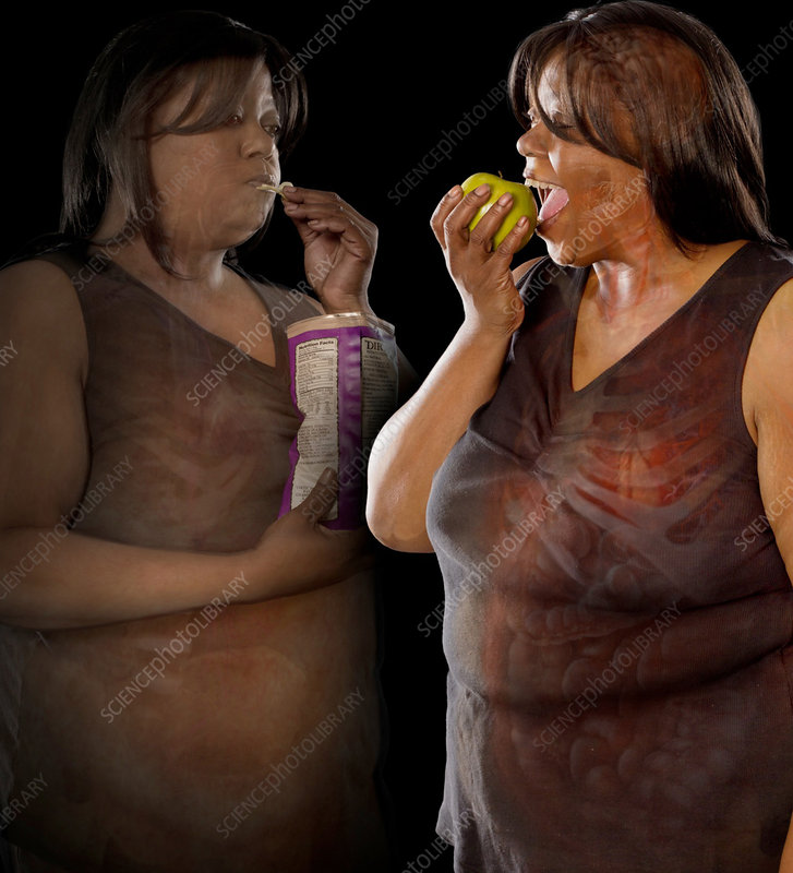 Type 2 Diabetes and Diet