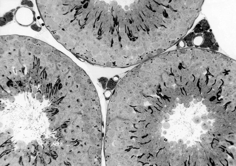 Seminiferous Tubules and Leydig Cells, LM