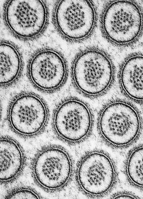 Microvilli in Cross-section TEM