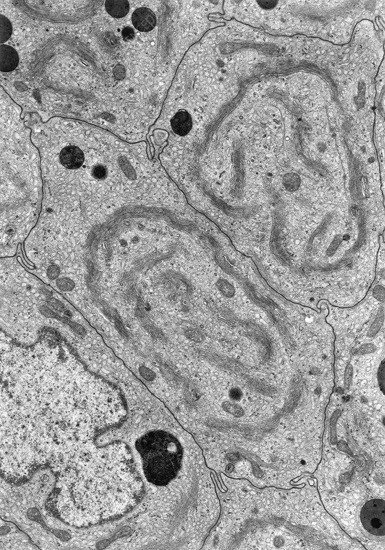 Golgi Complex TEM