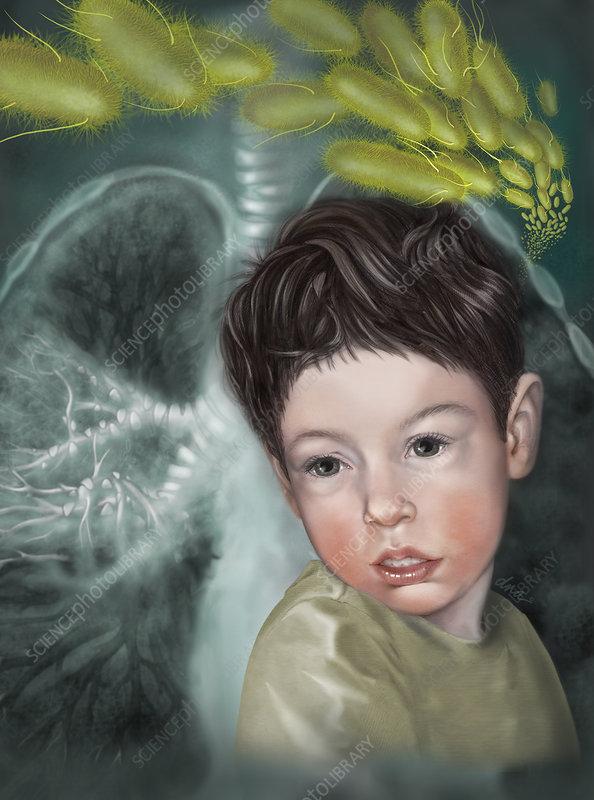 Childhood Pneumonia