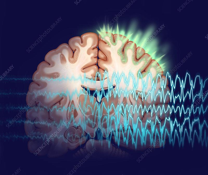 Epileptic Seizure illustration
