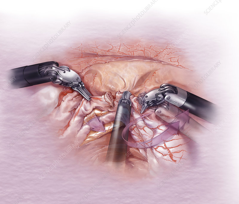 Surgical Release Of Ureter - Stock Image - C044  0365