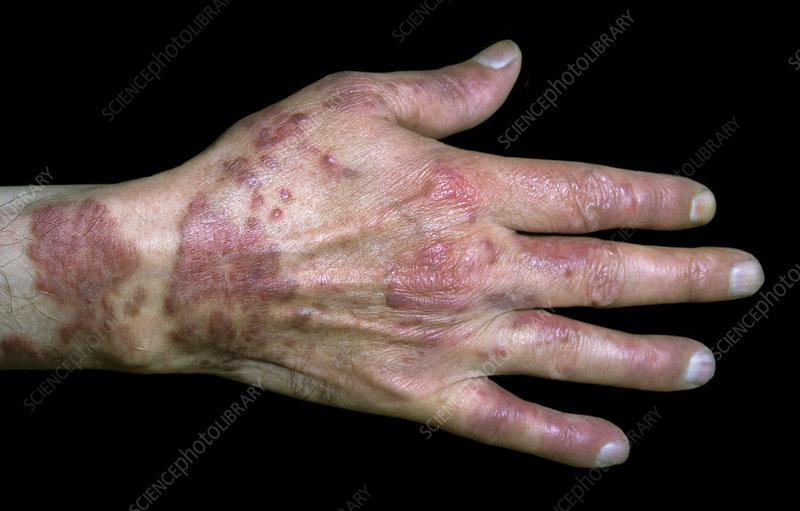 Sarcomul - rogather.ro Cancer sarcoma de kaposi