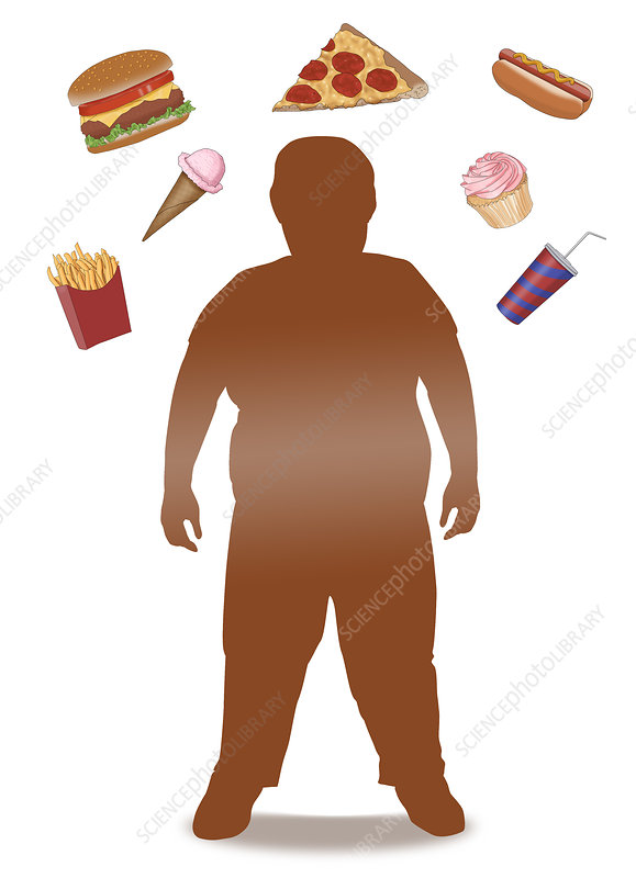 Obese Child and Junk Food, Illustration