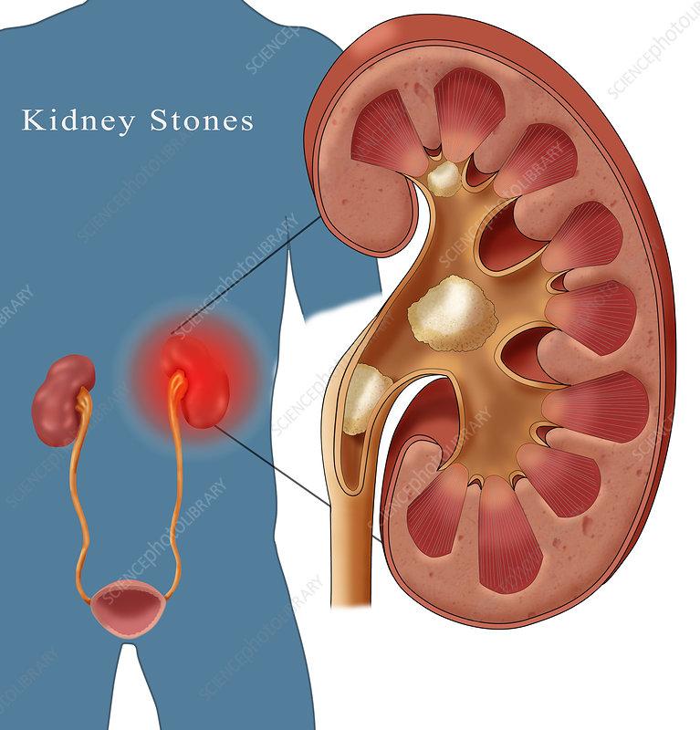 Kidney Stone Pain, Illustration