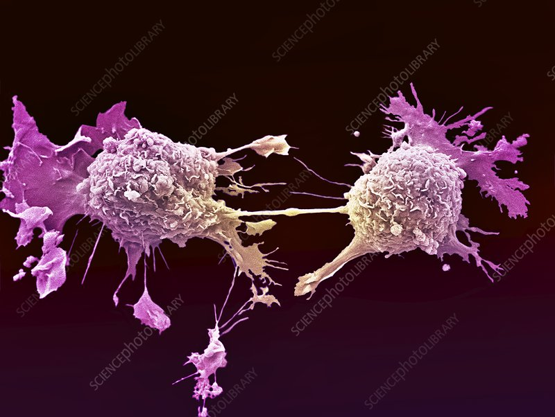 Lung cancer cells dividing, SEM