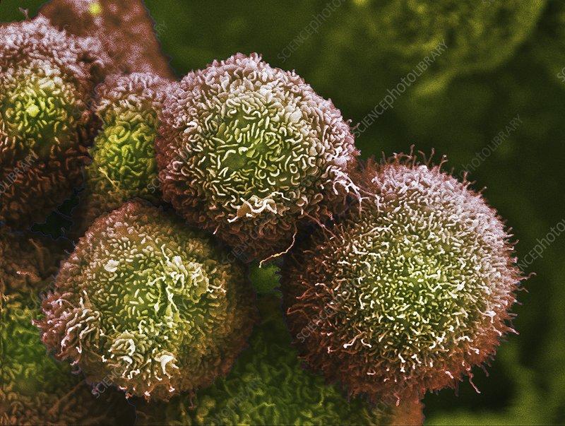 Pancreatic cancer cells, SEM